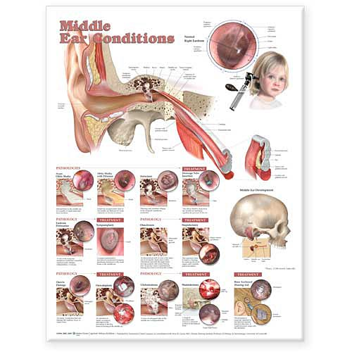 Earnosethroat skeletons and more middle ear conditions styrene plastic chart ccuart Images