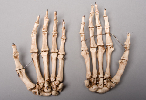 Skeleton Hands Life Size Pair 2nd Class Aged Version Sm376da